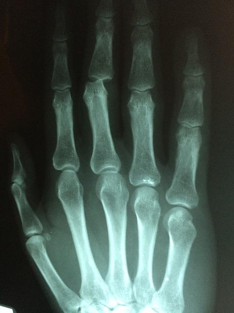 【ギター】『指を怪我して練習ができない』と諦めてはいけない!?